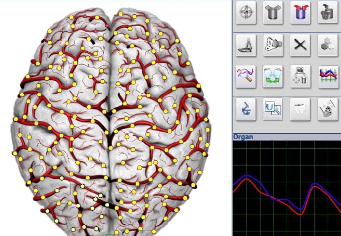 NLS image brain